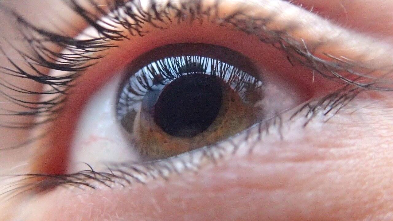 Afectiuni oculare frecvente - oftalmologie, imagine generica